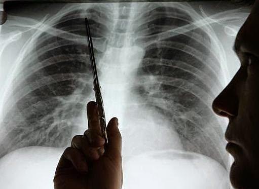 ¡Alarmante! 10 millones de personas morirán este año de cáncer, según OMS